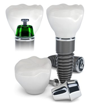 Photo of dental implant components separate and all in place with the implant crown on top; from the office of Philadelphia, PA dentist Dr. Michael Weiss.