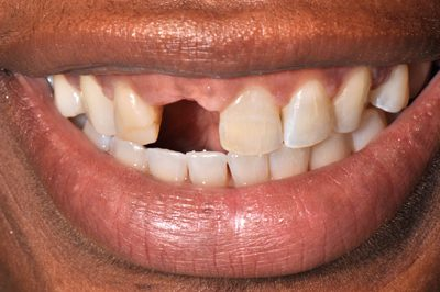 Close-up smile photo before a patient received a dental implant to replace her right central incisor from Philadelphia cosmetic dentist Dr. Michael Weiss.