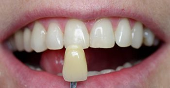 After teeth whitening close-up photo of a patient's teeth with a new dental tooth shade held up to his teeth; for information on Zoom whitening from Philadelphia dentist Dr. Michael Weiss.