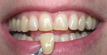 Before teeth whitening close-up photo of a patient's teeth with a dental tooth shade held up to his teeth; for information on Zoom whitening from Philadelphia dentist Dr. Michael Weiss.