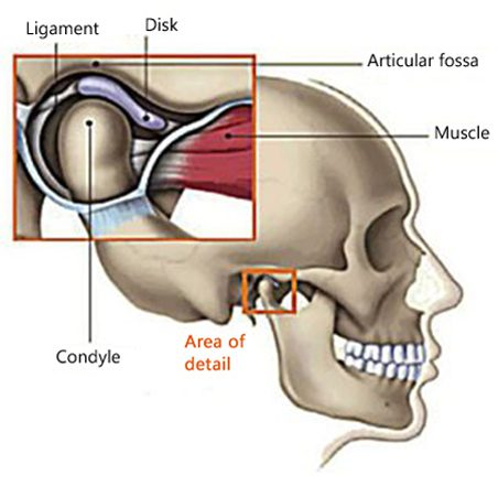 Diagram of the temporomandibular joint with the mandibular condyle resting in the articular fossa of the skull and the disk and the ligament between are attached to the muscle; for information on dentists in Philadelphia treating TMJ disorder.