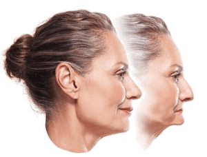 Two profile photos of a woman who experienced jawbone shrinkage and facial collapse, which can be prevented with implant overdentures, available from Philadelphia cosmetic dentist Dr. Michael Weiss.