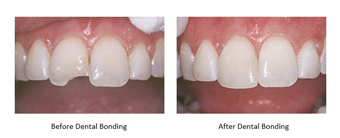 before and after dental bonding to repair a chipped tooth