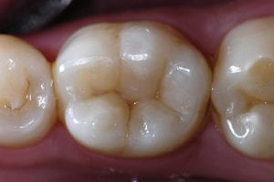 picture of teeth with natural-looking composite fillings.