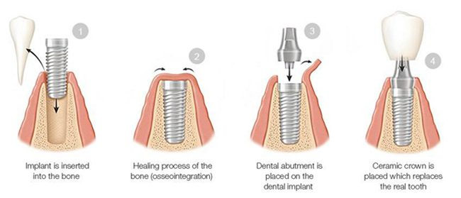 Diagram of four phases of dental implants, including insertion, healing, abutment placement, and securing the crown.