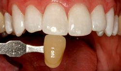Photo of radiant teeth after KöR whitening, which is available from Beverly Hills cosmetic dentist Dr. LeSage.