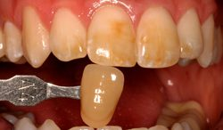 Before KoR teeth whitening photo of dark stained teeth. This treatment is available from Beverly Hills cosmetic dentist Dr. LeSage.