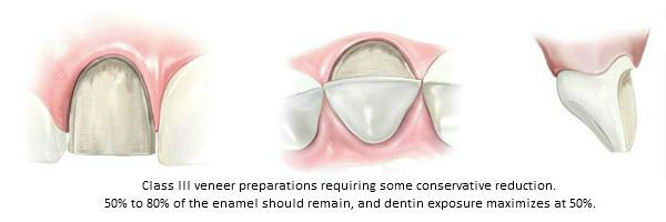 Diagram of Class III porcelain veneer preparations with conservative reduction. This classification was established by Beverly Hills accredited cosmetic dentist Dr. Brian LeSage.