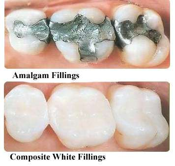 Top is a an amalgam filling and bottom is Composite white filling