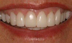 Person smiling and showing their top front teeth, showing 11 teeth