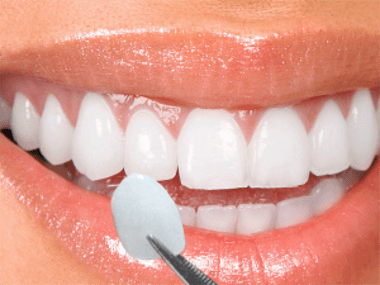 A woman's smile with a single porcelain veneer help next to a lateral incisor