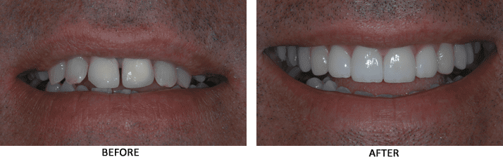 Porcelain crowns before-and-after photos from Woolf Dental in Bakersfield, Ca
