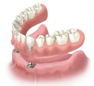 Diagram of a snap-on denture - an affordable dental implant option