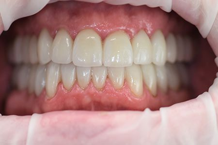 Larry's great dental work by Dr. Heng Lim