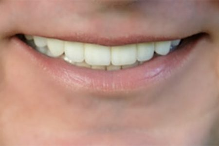 Ted's great teeth after Dr. Heng Lim's work