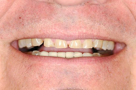Ted's Teeth before his Smile Makeover