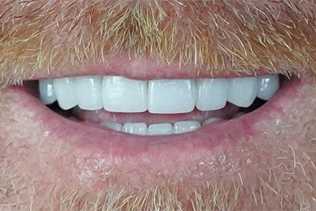 Troy's teeth after Owasso Dentist Dr. Heng Lim's work