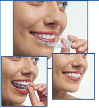 Woman placing Invisalign on her teeth