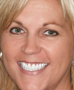 Photo of smiling patient after smile makeover