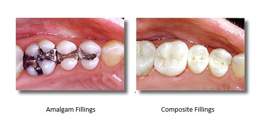 before and after silver fillings