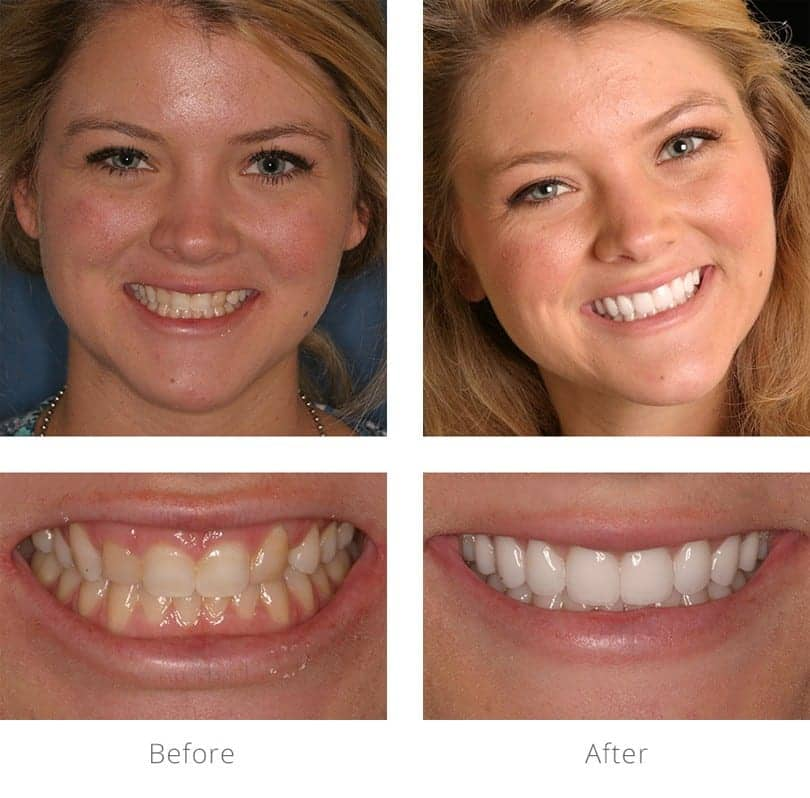 Actual patient before and after gum lift