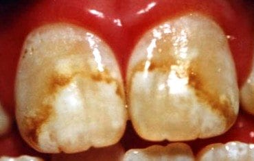 Severe fluorosis Stains