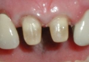 tooth preparation for porcelain crowns