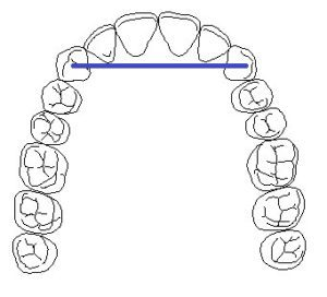 diagram of a dental bridge with a line connecting the canine teeth