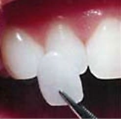 example of how thin a porcelain veneer is