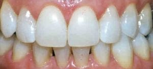 photo-of-teeth-whitening-after-treatment