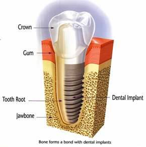 A diagram of a Salem, MA dental implant