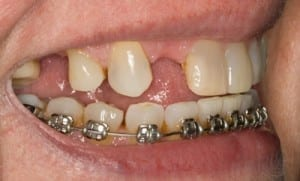 before Boston dental implants