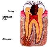 Chart of a tooth infection that can occur during a Salem, MA dental emergency