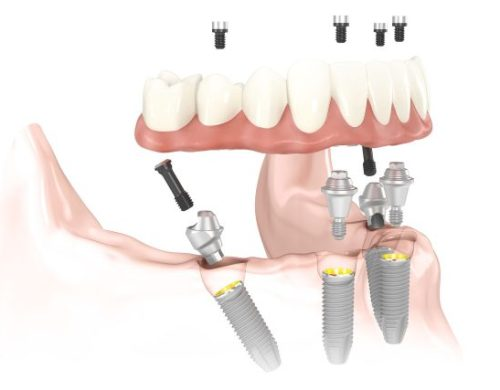 A drawing of a lower denture being placed over a lower jawbone, over four angled implants, with screws shown that will be placed to secure the denture