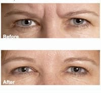 Picture of Botox frown lines corrected.