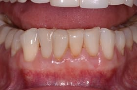 After photo of New Orleans soft tissue grafting from Dr. Duane Delaune of Metairie.