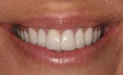 Picture of teeth that had New Orleans tetracycline stains after cosmetic treatment from Dr. Delaune.