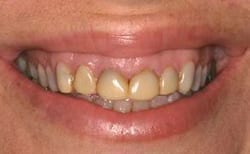 Picture of New Orleans tetracycline stains before cosmetic treatment from Dr. Delaune.