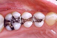 Picture of amalgam fillings before replaced with New Orleans white fillings.