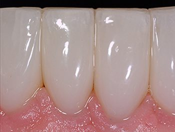 After photo of teeth that formerly had black triangles and were later treated with Bioclear, available from La Jolla dentist Dr. Stephen Doan.
