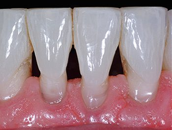 Before photo of teeth with black triangles that were later treated with Bioclear, available from La Jolla dentist Dr. Stephen Doan.