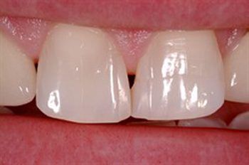 Before photo of a a tooth gap that treated with Bioclear, available from La Jolla dentist Dr. Stephen Doan.