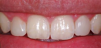 After photo of a former peg lateral tooth that was treated with Bioclear, available from La Jolla dentist Dr. Stephen Doan.