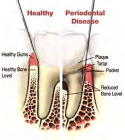 Gum disease hard to detect without a professional exam.