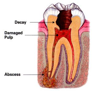 Dr. Hadgis of Grosse Pointe Woods offers root canal treatment.