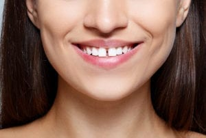 A woman with a tooth gap