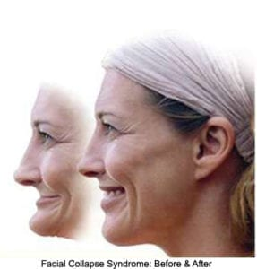 An illustration of what facial collapse does to a jaw. Two pictures of the same woman. One with and one without facial collapse.