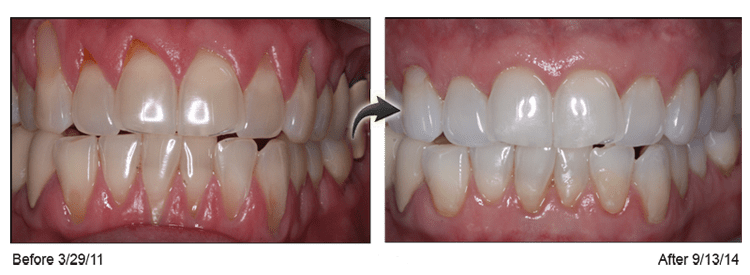 Before-and-after close-up upper and lower teeth photos of the Pinhole Surgical Technique for gum recession. In the left photo, there is gum recession in upper and lower teeth. The right photo shows the teeth three years later after the Pinhole technique. The gums are healthy and the recession is still corrected. This information is from Gross Pointe Woods dentist Dr. Ted Hadgis.