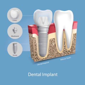 An illustration of a dental implant next to a natural tooth