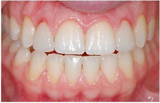 An example of inflammed gums from porcelain veneers.